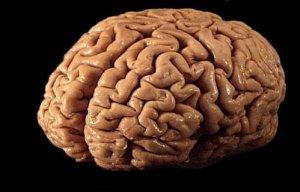 wpid-brain1.jpeg